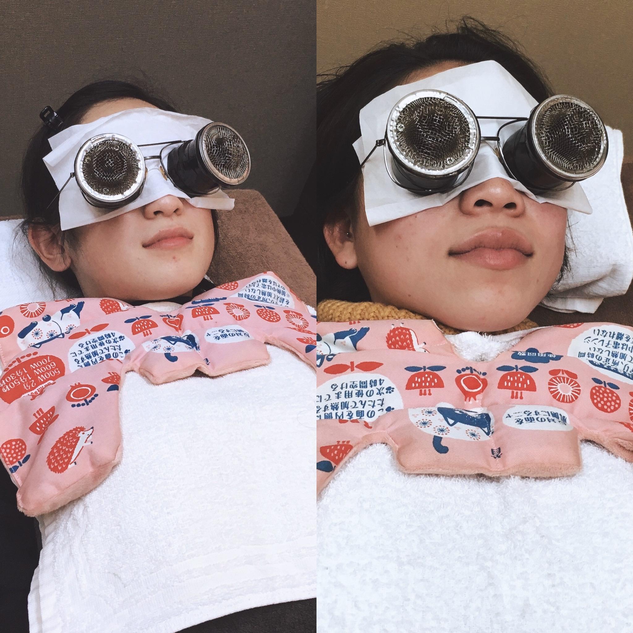 眼灸 眼精疲労には効果的