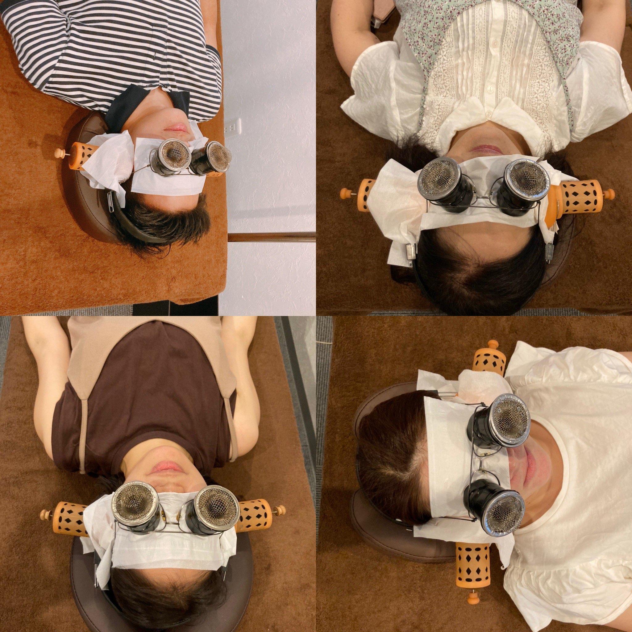 眼灸と耳灸
